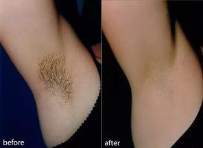 Чтобы волосы не росли на животе и сосках